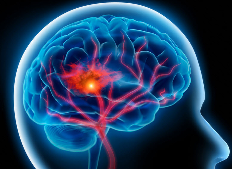 cerebro-multitarea-commsense
